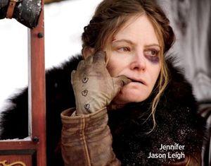 Jennifer Jason Leigh and her black eye